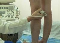 Консультация ангиохирурга
